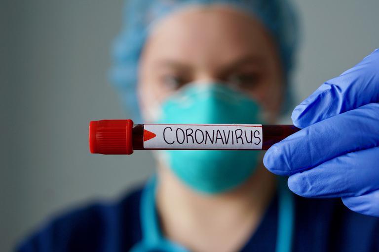 http://tv25.ge/files/macnes%20fotomasala%202/22ab523312b1d9156267-koronavirus-maska-zascita-oprema-1.jpeg